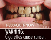 Proposed FDA rules would mean graphic visual images on packs.
